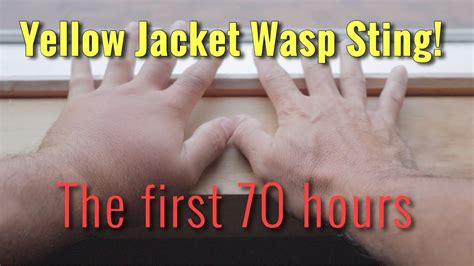 YELLOW JACKET WASP STING: The first 70 hours - YouTube